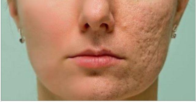 Frote esto en cualquier cicatriz, arruga o mancha que tiene en su piel y mira como desaparecen en cuestión de minutos