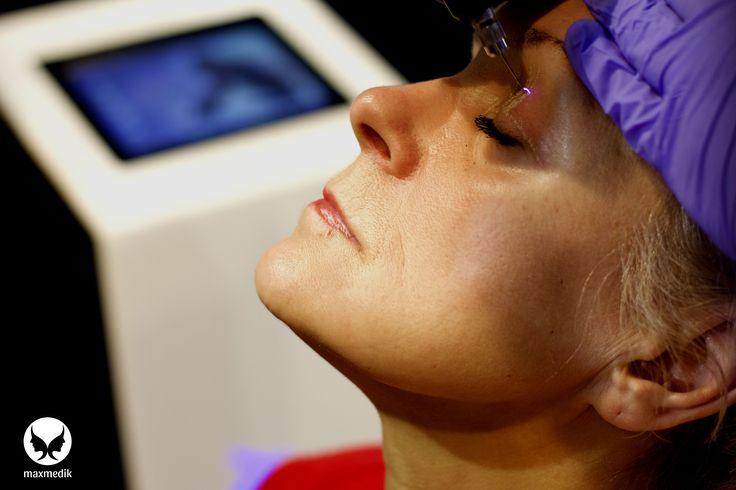 Treatment with Plasma ARC. Blepharoplasty of eye lid.   Plasma ARC - device made in UE.  It creates the plasma arc.  www.medikapoland.com