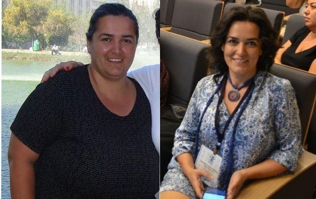 Obezite Cerrahisi Diyetleri – Obezite Cerrahisi -Beslenme Danışmanlığı