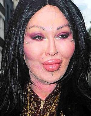 Pete Burns-The Dead or Alive singer has actually made a documentary about his botched plastic surgeries. He made a documentary about his plastic surgery nightmare. He's had his lips injected, cheek implants, several rhinoplasties, and various reconstructive surgeries after.