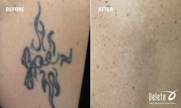hand tattoo removal results