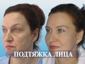 Подтяжка лица | Контурная пластика лица