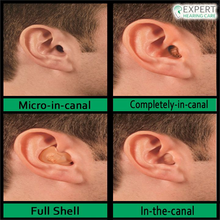 From Full shell to Deep canal, we have the best quality custom in-the-ear models made to fit the contours of your ear canal. Visit us: http://bit.ly/2icurnR #ExpertHearingCare #Custombuild