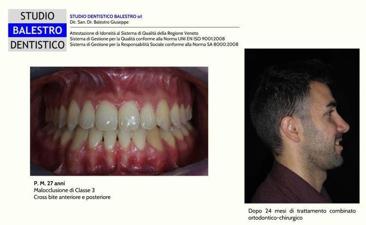 Casi clinici ortodontici Chirurgia ortognatica http://www.studiodentisticobalestro.com/2017/01/malocclusione-di-classe-3-chirurgia.html
