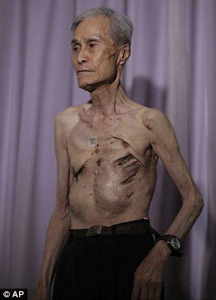 He was 16 When Nuclear Bomb Exploded In Japan. - Imgur
