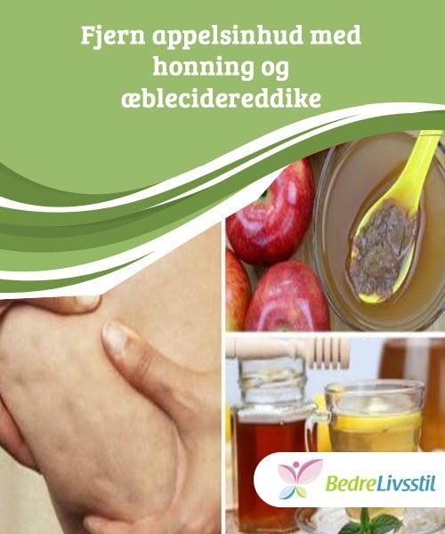 Fjern appelsinhud med honning og æblecidereddike  For effektivt at komme af med appelsinhud vil du få #brug for udvordes #behandlinger sammen med fysisk aktivitet og #behandlinger til at rense din krop indefra og ud. Lær om en meget #effektiv behandling i denne artikel.