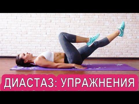 Убрать обвисший живот после родов диастаз прямой мышцы живота - YouTube