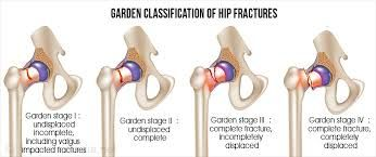 Image result for intracapsular femur fracture
