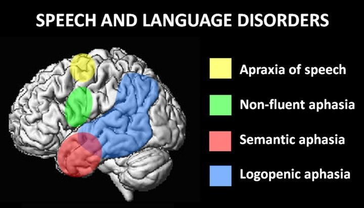 Areas of the brain affected by speech and language disorders