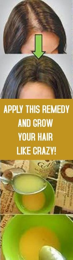 Grow Hair With These Home Remedy That Even The Doctors Did Not Know #remedy #hairgrowth #hairloss #haircare #homeremedies