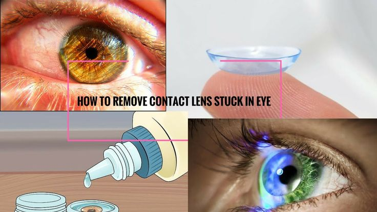 how to remove contact lens stuck in eye how to remove