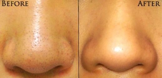 Blackhead removal! Mix lemon juice and baking soda until you have a paste, apply, and wait until its dry!