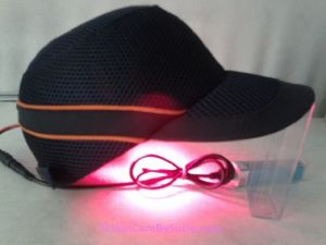 Laser Hair Regrowth Baseball Cap. Laser Hair Regrowing Baseball Cap:The Most Powerful At-Home Laser Hair Therapy As approximately 70% of all men and 30% of women are suffering from hair loss every day, innovative products have been released in the marketplace, like the Laser Baseball CapAt-Home Laser Therapy Unit to slow the progression of hair loss. It has gained tremendous popularity with people who hope to slow or stop hair loss effectively using the best technology with…