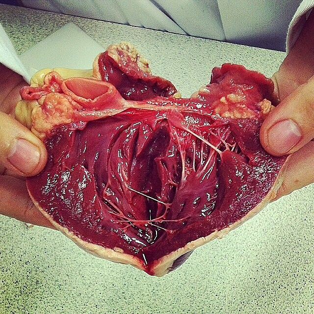 dissection of the heart showing the chordae tendineae (tendinous, Human Body