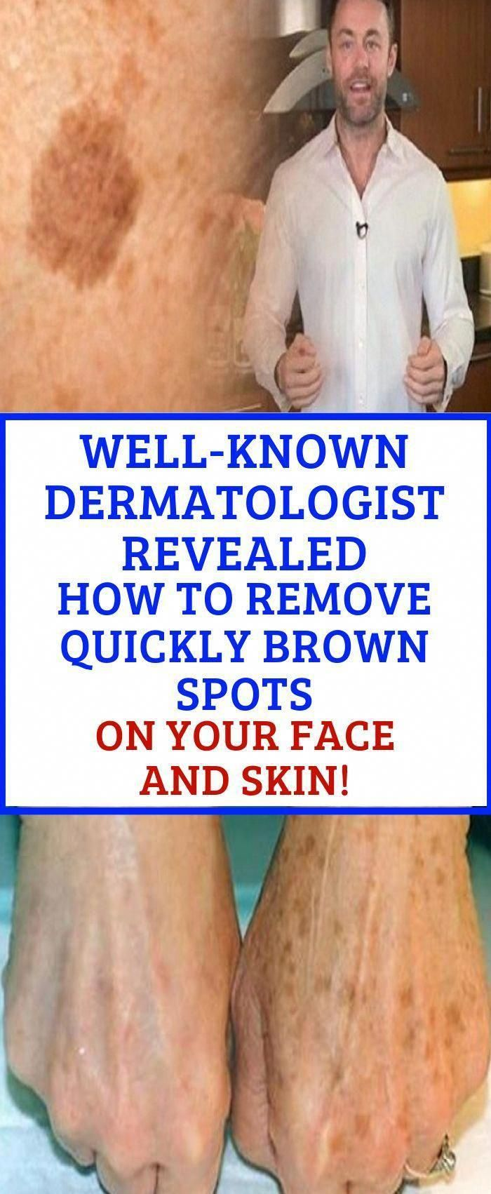 Find Out Who Is Worried About Remove Brown Spots And Why You Should Pay Attention Healthy Medicine Tips In 2020 Brown Spots On Face Brown Spots On Skin Spots On Face