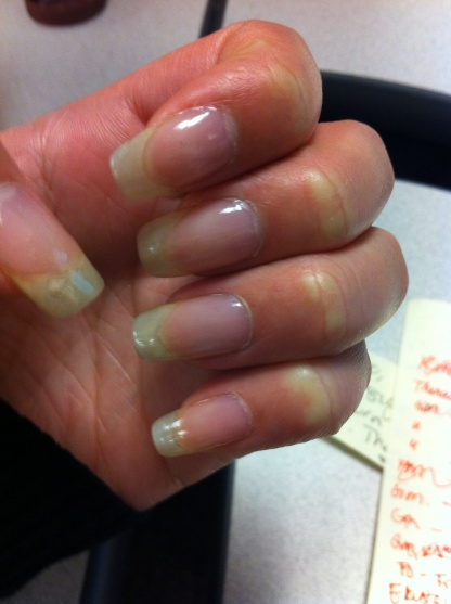 17 Best Ideas About Grow Long Nails On Pinterest