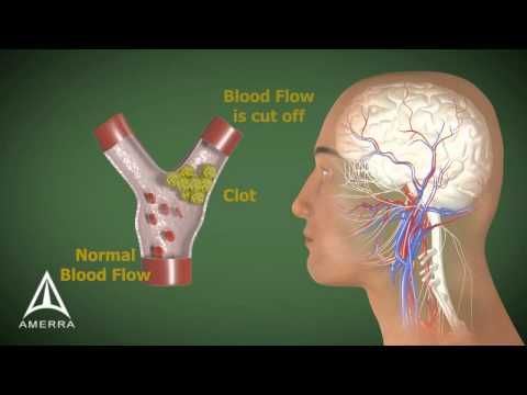 How To Understand The Different Types Of Stroke. | hubpages