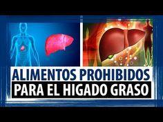 ALIMENTOS PROHIBIDOS PARA EL HIGADO GRASO |  DIETA PARA PERSONAS CON HIGADO GRASO - YouTube
