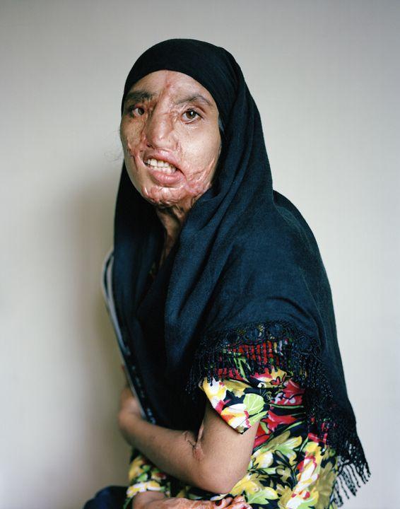 women's empowerment, izabella demavlys, acid violence, domestic violence, violence against women, abuse