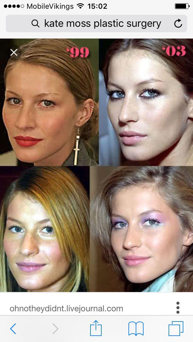 Facial plastic surgery type