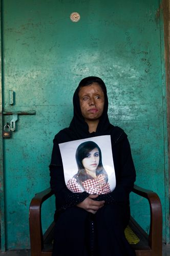 still beautiful-Saira Liaquat, 22 yrs, burn victim and survivor, holding an old photograph of herself before she was burned with acid by her husband. There are presently over 300 cases of burn victims registered in Pakistan. Most victims are between the ages of 14 - 25 years old.