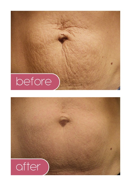 FDA Approved to reduce stretch marks