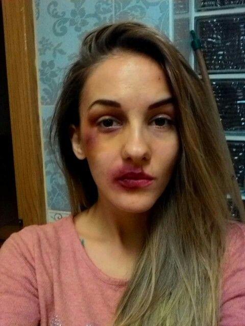 Bruise make up