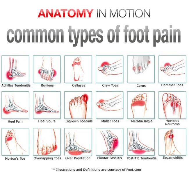 Foot pain Excellent chart. No matter where the pain is, having this lotion handy will give relief.