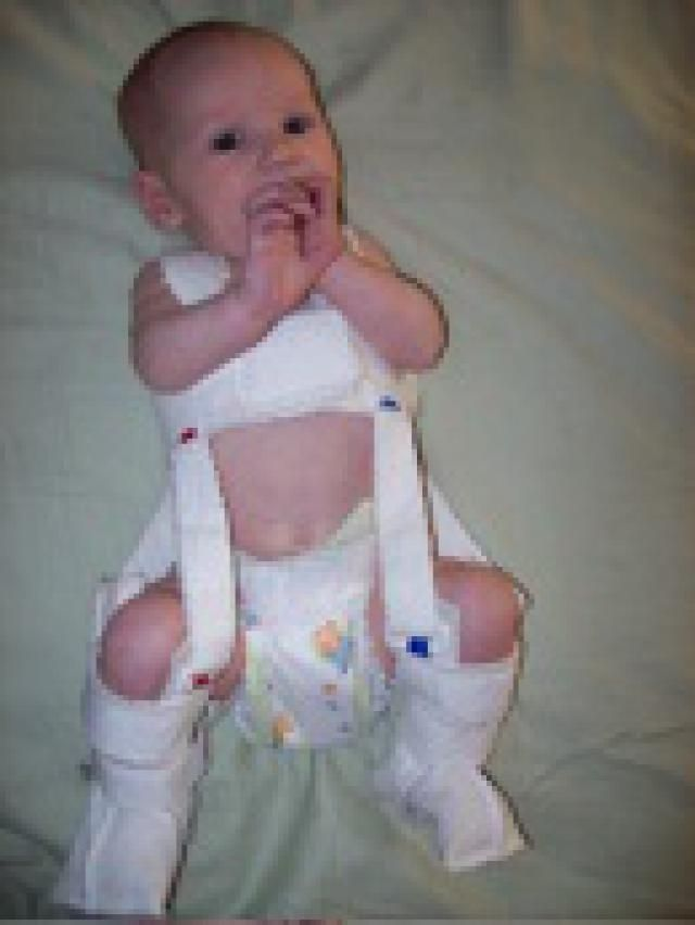 What to Do About Your Baby's Hip Dysplasia: A baby wearing a Pavlik harness for treatment of hip dysplasia.
