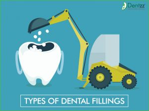 Know different types of #Dental fillings. Here.