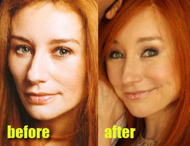 tori amos Celebrity Plastic Surgery Before & After