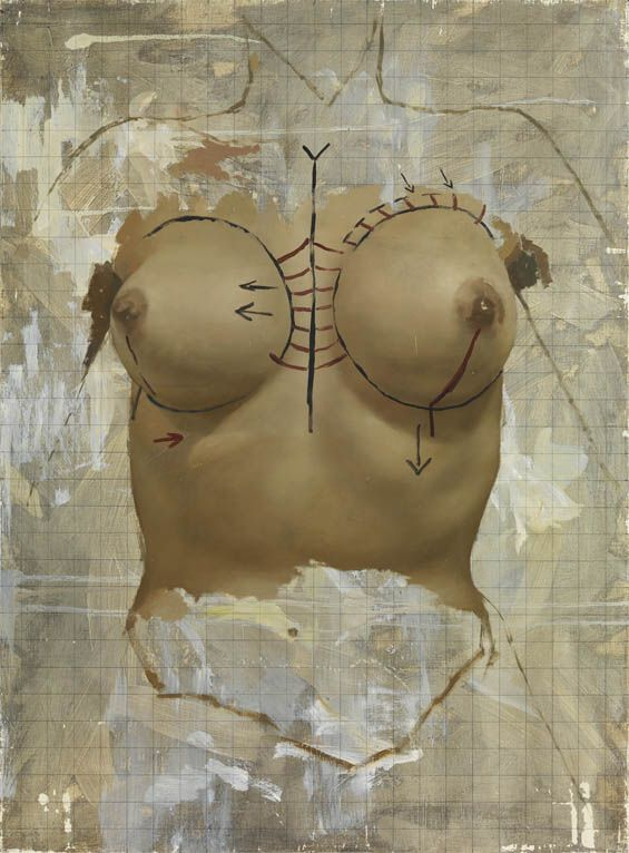 Surgery Jonathan Yeo has created a series of paintings that capture women undergoing cosmetic surgery.