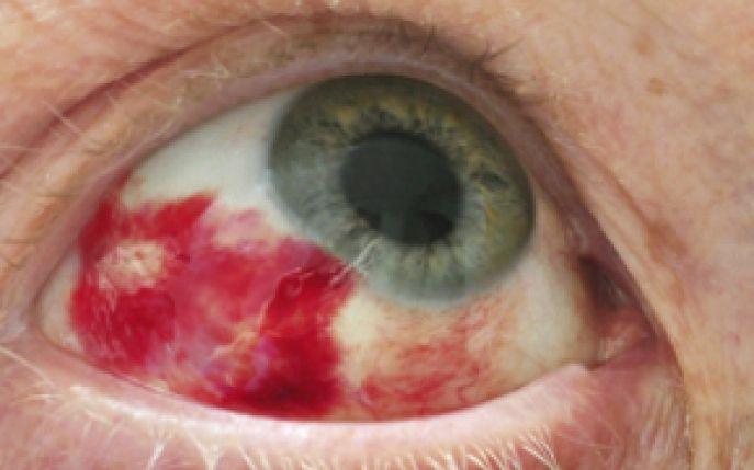Afla daca este cazul sau nu sa mergi la medic atunci cand ti se sparge un vas de sange la nivelul ochiului! Descopera cauzele hemoragiei subconjunctivale!