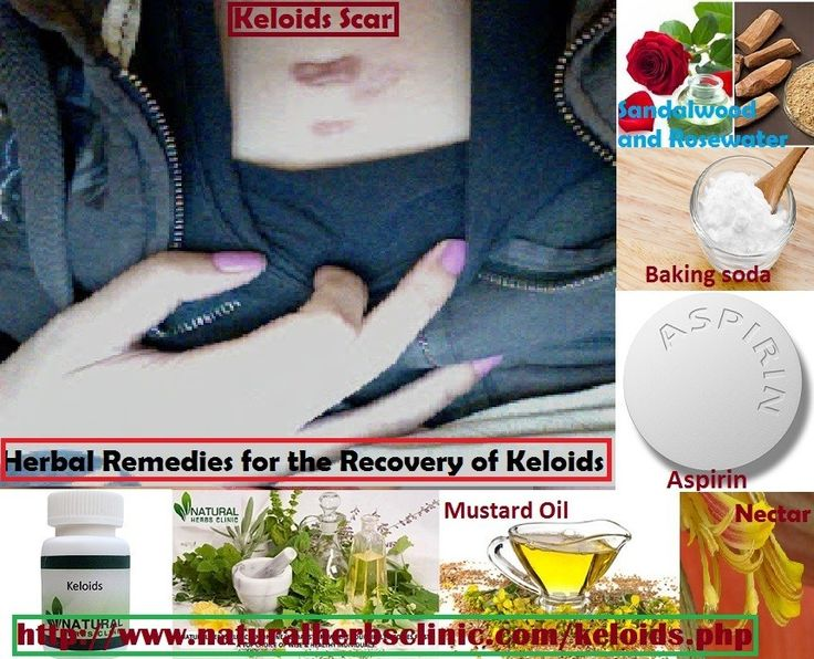 Keloids Symptoms include: Pigmentation of the skin, Pain, Irritation, Redness, Affectability, etc. Here some Keloids Natural Treatment that can help you disposes of keloids without laser treatment or surgery.... https://www.weedhorn.com/keloids-scar-symptoms-and-natural-herbal-treatment-2022072975.html