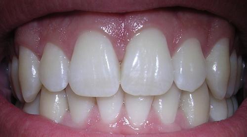 Simaklah tips kesehatan gigi selajutnya yaitu Cara Memutihkan Gigi dengan bahan alami. http://www.masbroo.com/cara-memutihkan-gigi-secara-alami.html