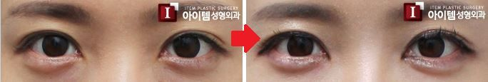 plastic surgery-cosmetic surgery-loveband formation/There are several types of loveband formation surgery such as (1)Filler injection (2)Fat grafting (3)Usage of Alloderm. With this procedure, it can creat more vivid and adorable eyes. Surgery prcoedure can be determined by pateint's preference and diagnosis. #plasticsurgery #cosmeticsurgery #eyesurgery #loveband #makeover #eyemakeup #filler #fattransfer #plasticsurgeon