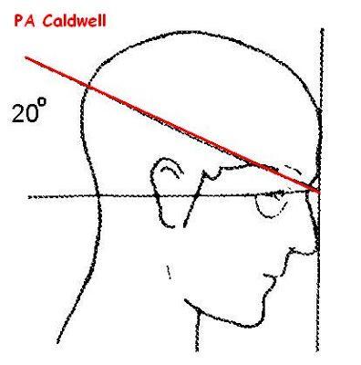Skull X-ray Positioning | Skull Positioning