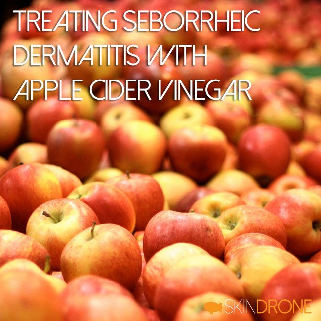 Treating Seborrheic Dermatitis With Apple Cider Vinegar ...