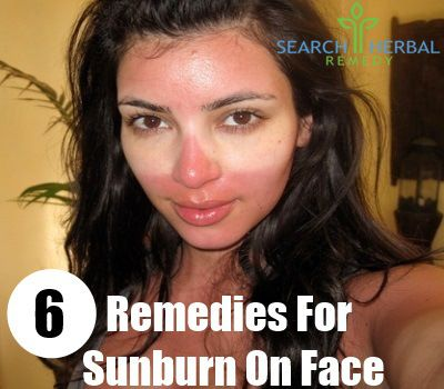 6 Remedies For Sunburn On Face