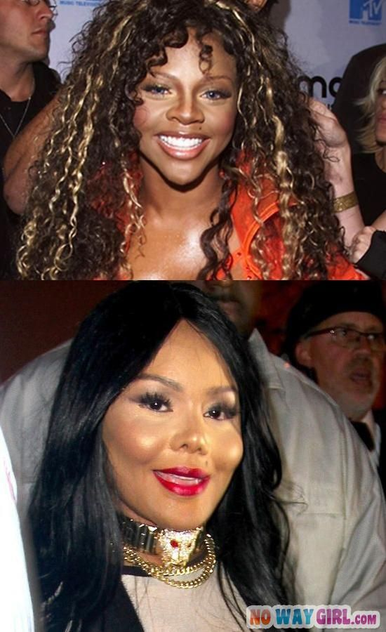 Lil Kim looked so much better before plastic surgery.