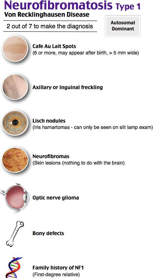 139 best images about Neurofibromatosis on Pinterest | The ...