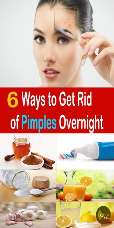 6 Ways to Get Rid of Pimples Overnight? (Naturally…