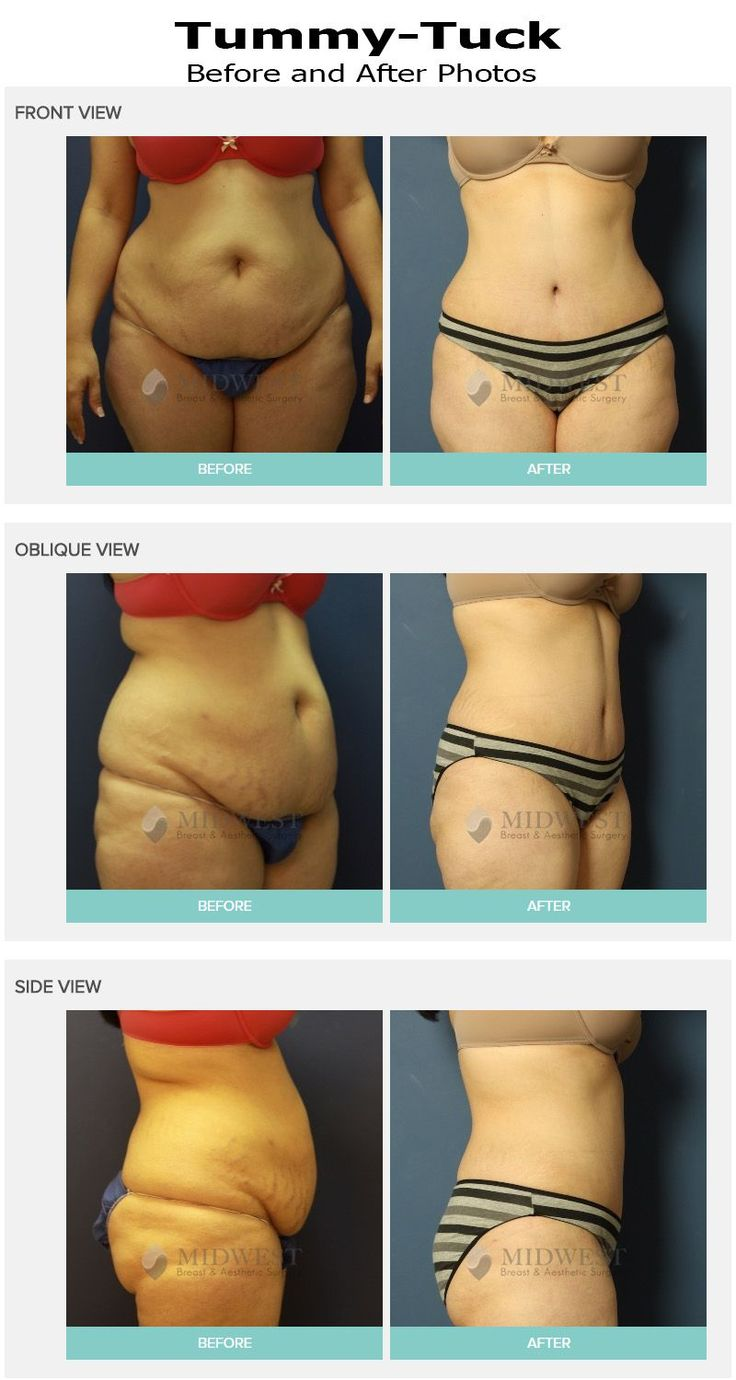 Tummy Tuck (Abdominoplasty) Columbus, Ohio – Drs. Kocak, Tiwari Tummy Tuck Before and after photo