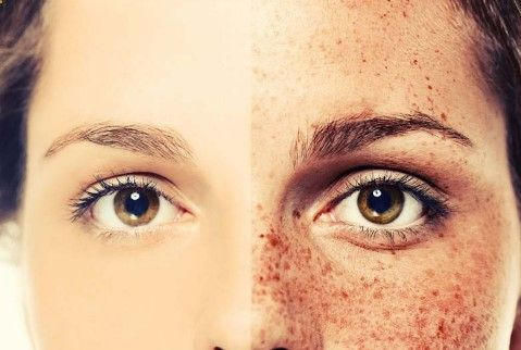 How to Remove Freckles - Makeup for freckles and brown skin spots. Know how you can do home treatment for acne marks and brown skin spots. How to Remove Mole - Remove flat moles from your skin with natural treatment. howtoremovefreckl...