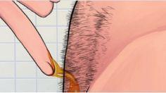 IMPRESSIONNANT! Voici comment faire pour éliminer les poils Naturellement et définitivement (sans Rasage et sans recours à la cire) !