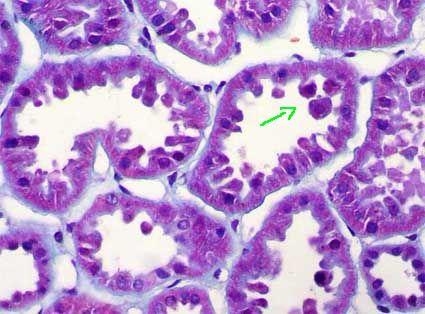 Interstitium tubules