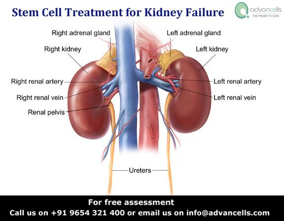 #Chronic #Kidney Disease is a condition that pushes the patient towards complicated and expensive kidney transplant procedure. In Vivo Stimulation of #Stem #Cells followed by Growth Factors and Stem Cell Injections can eliminate the need of transplant and dialysis by repairing the diseased organ. To know more : http://bit.ly/1ycesmJ