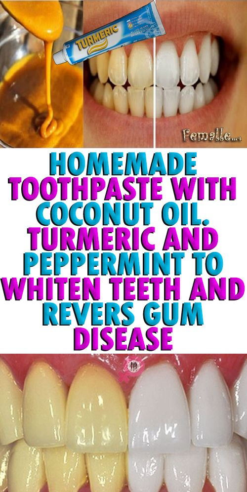 turmeric a homemade whitening toothpaste Is turmeric good for whitening teeth turmeric contains vitamin c, calcium, magnesium, and selenium which are essential to strong, healthy teeth it can be used alone or in combination with other remedies to get rid of stains and thus acts as teeth whitener.