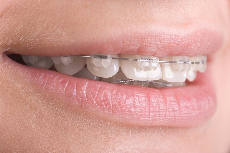 Types Of Braces For Teeth – Teeth Straightening Options - http://emergencydentalcaretips.com/types-of-braces-for-teeth-teeth-straightening-options/ Learn about what type of braces work the fastest types of metal braces ceramic braces cost braces for teeth cost in india teeth braces cost traditional braces teeth braces age limit metal braces cost