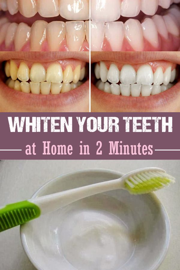 Whiten Your Teeth at Home in 2 Minutes - Inspiring Beauty Tips